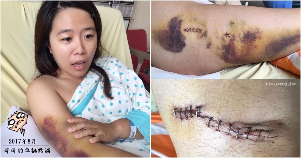2017年車禍點滴-桃園醫院單人房住院紀錄(右大腿骨折/膝蓋縫線/全身多處瘀青)