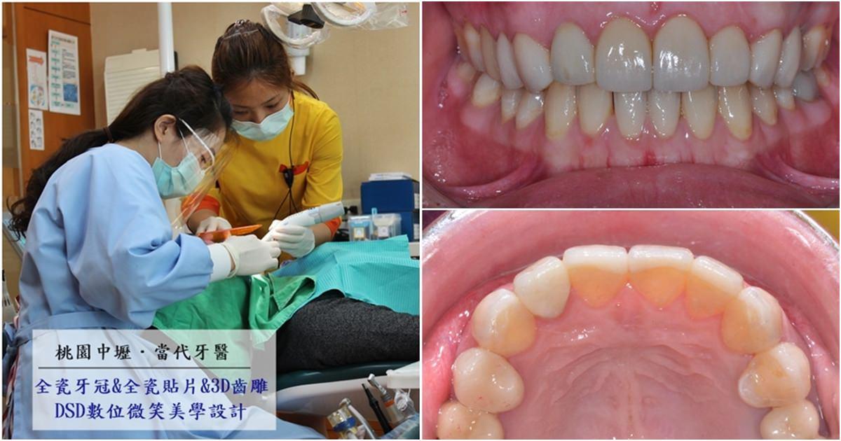 桃園中壢牙醫|『當代牙醫診所』我的全瓷牙冠&全瓷貼片&DSD數位微笑美學設計&3D齒雕全紀錄!